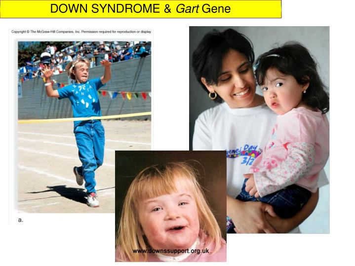 DOWN SYNDROME &