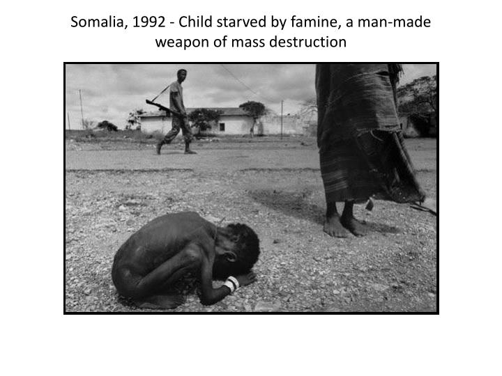 Somalia, 1992 - Child starved by famine, a man-made weapon of mass destruction
