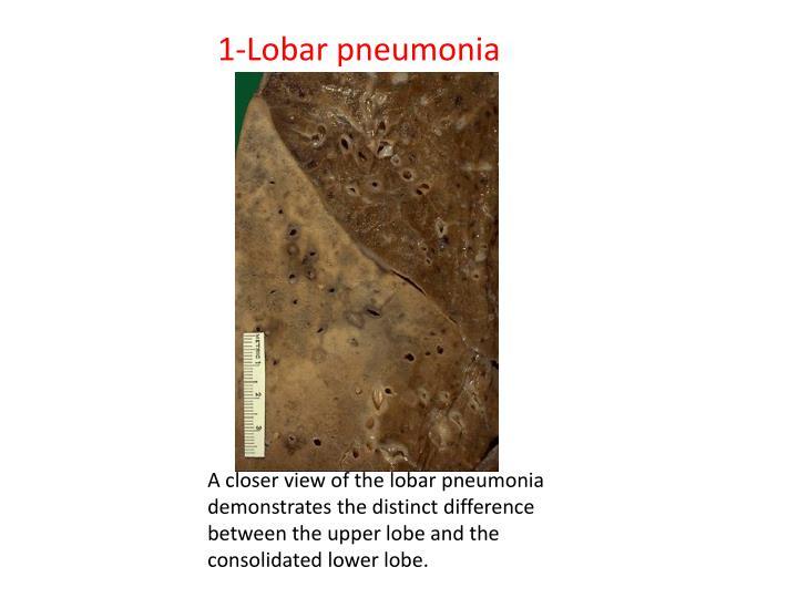 1 lobar pneumonia