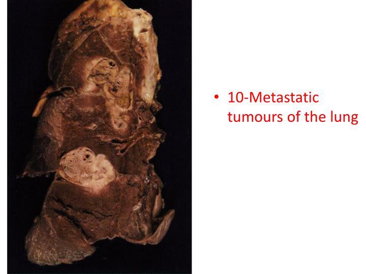 10-Metastatic