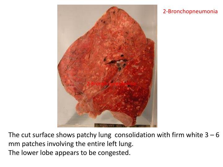 2-Bronchopneumonia