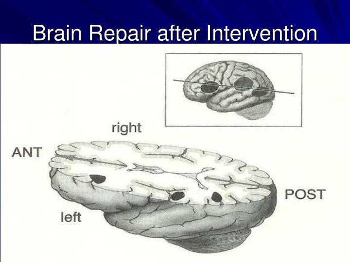 Brain Repair after Intervention