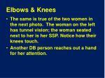elbows knees