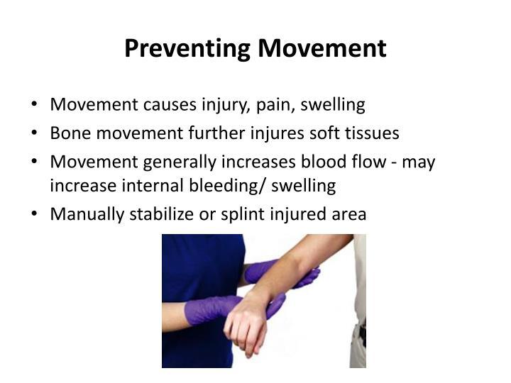 Preventing Movement