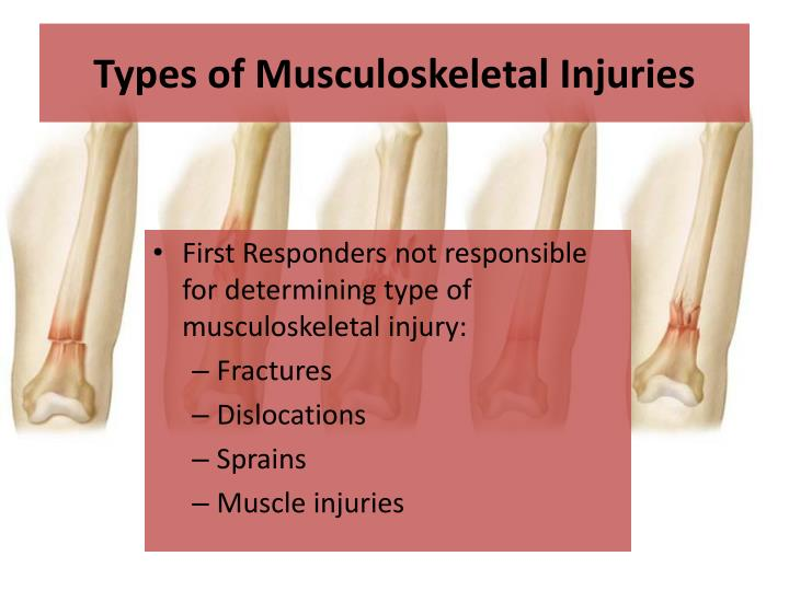 Types of Musculoskeletal Injuries