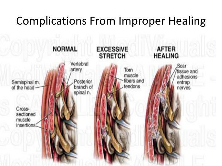 Complications From Improper Healing