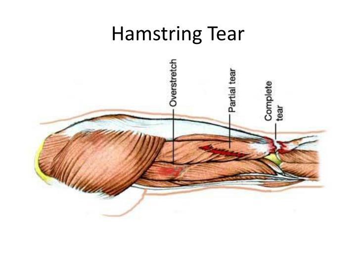 Hamstring Tear