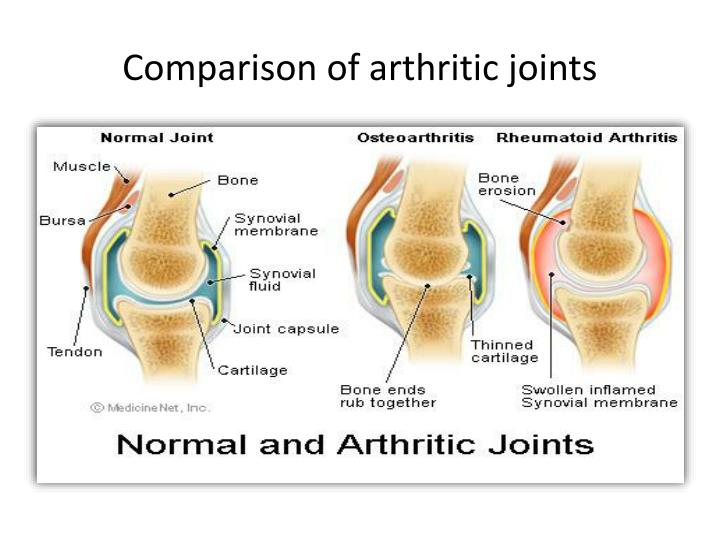Comparison of arthritic joints