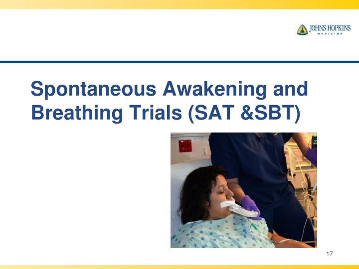 Spontaneous Awakening and Breathing Trials (SAT &SBT)