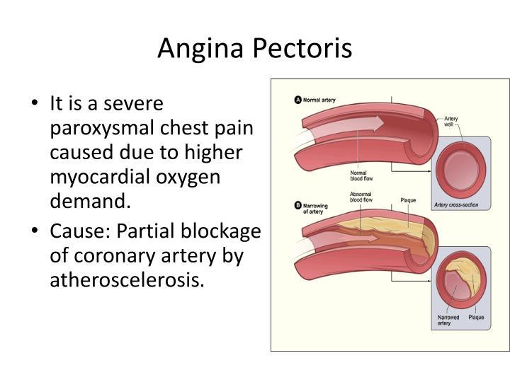 Overview Of Coronary Artery Disease Part 1 – Fondos de Pantalla