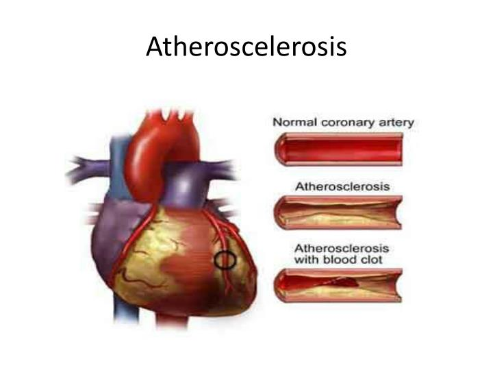 an overview of cardiovascular diseases Coronary heart disease is the leading cause of death in the united states coronary heart disease is when the arteries that carry blood to the heart become blocked with cells, cholesterol, and fatty deposits, called plaque.