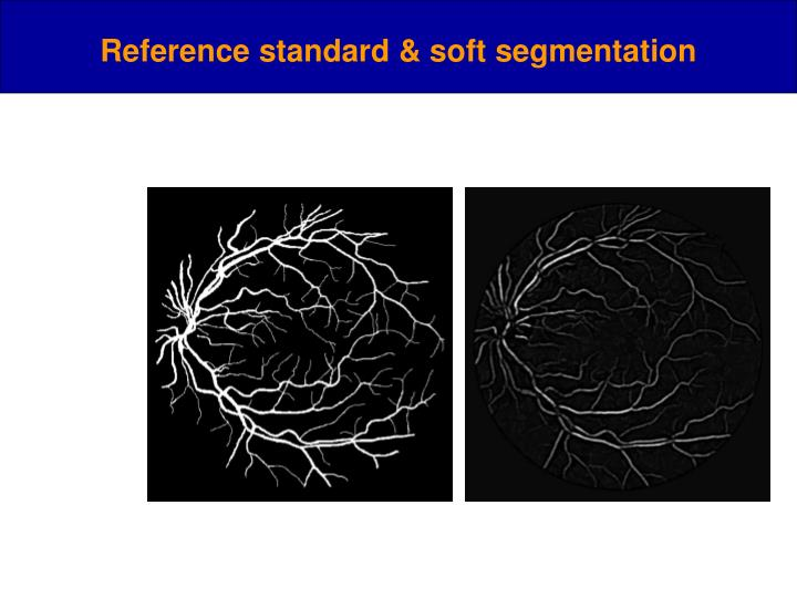 Reference standard & soft segmentation