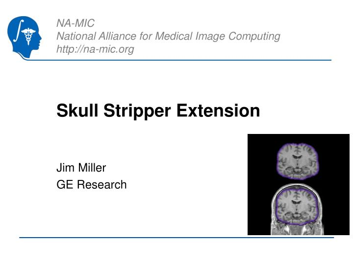 skull stripper extension n.