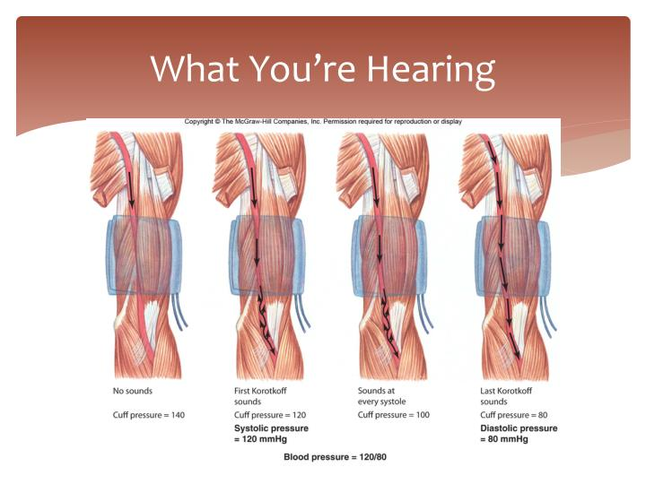 What You're Hearing