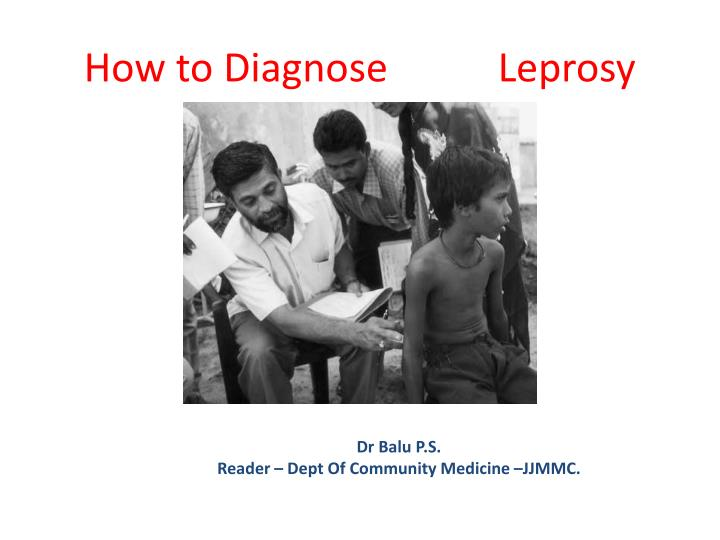 how to diagnose leprosy n.