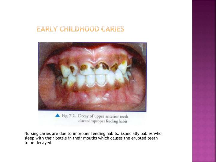 outline early childhood caries The purpose of this article is to address issues related to early childhood dental caries and the role pediatric nurse practitioners (pnps) can play in ameliorating symptoms and promoting the oral health of children.