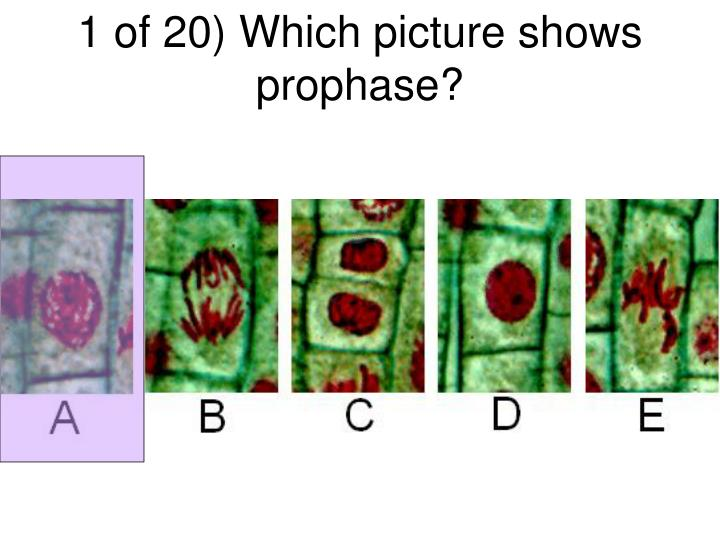 1 of 20) Which picture shows prophase?