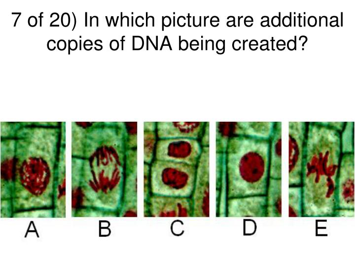 7 of 20) In which picture are additional copies of DNA being created?