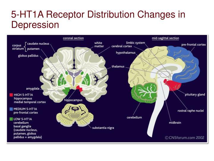 5-HT1A Receptor Distribution Changes in Depression