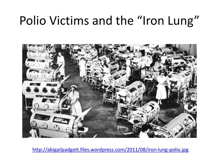 Polio victims and the iron lung