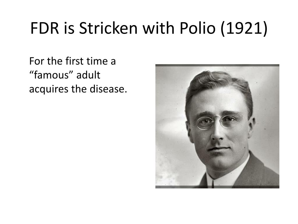 PPT - The Polio Crusade PowerPoint Presentation, free download ...