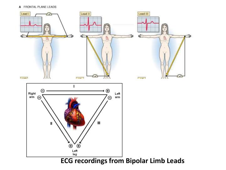 ECG recordings from Bipolar Limb Leads