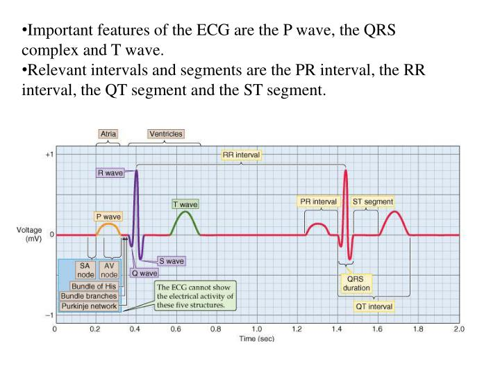 Important features of the ECG are the P wave, the QRS complex and T wave.