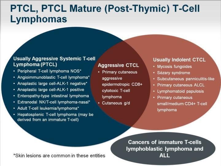 PTCL, PTCL Mature (Post-Thymic) T-Cell Lymphomas