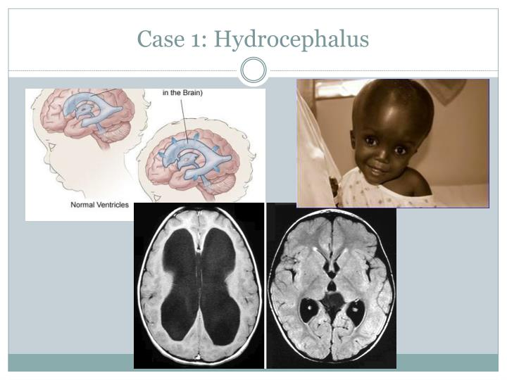 Case 1: Hydrocephalus