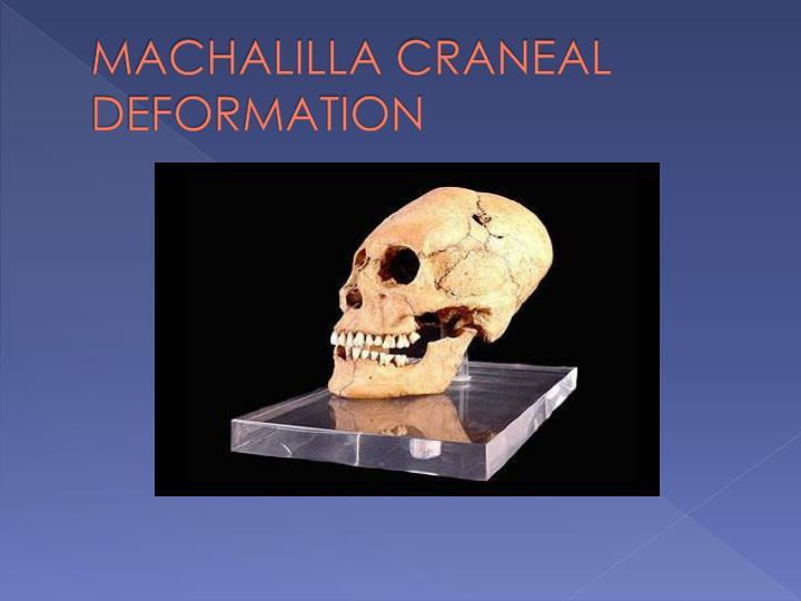 MACHALILLA CRANEAL DEFORMATION