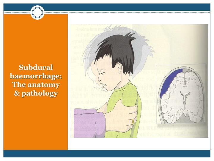 Subdural haemorrhage: The anatomy & pathology