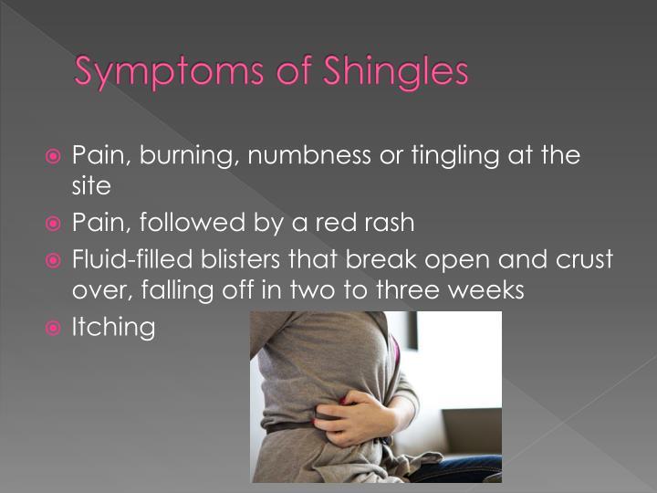 Symptoms of Shingles