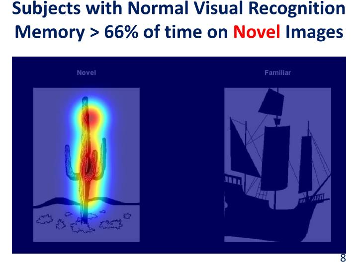 Subjects with Normal Visual Recognition Memory > 66% of time on