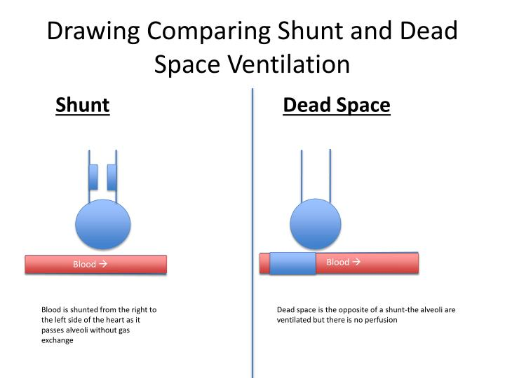 Drawing Comparing Shunt and Dead Space Ventilation