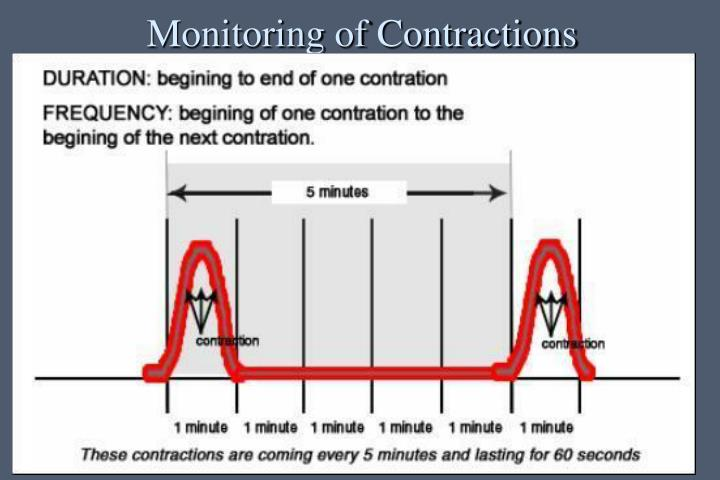 Monitoring of Contractions