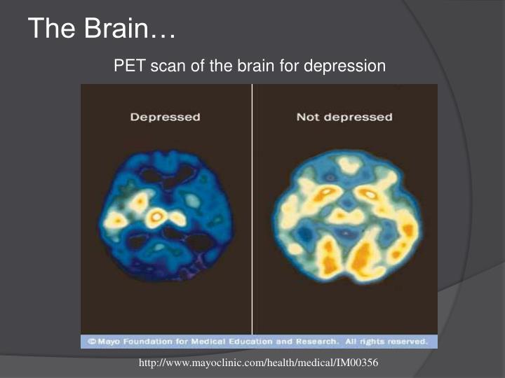 The Brain…