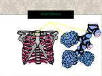hemothorax1