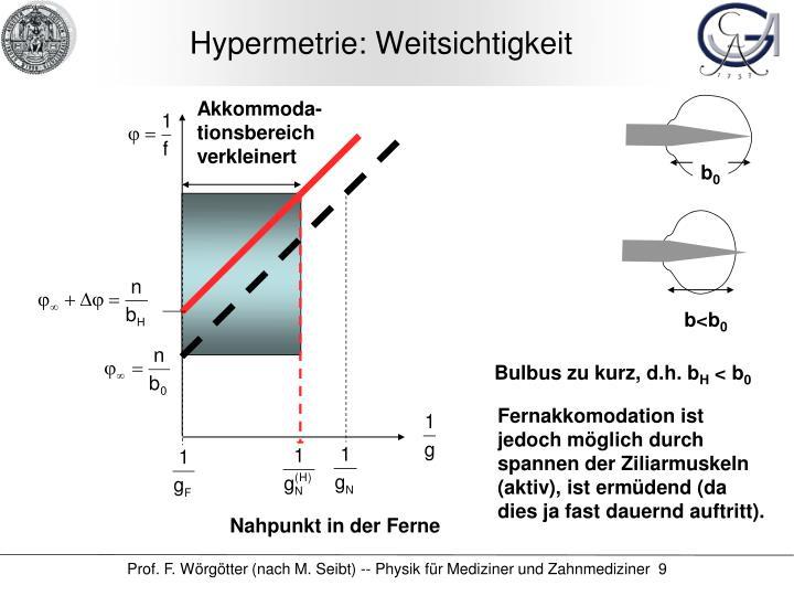 Hypermetrie: Weitsichtigkeit