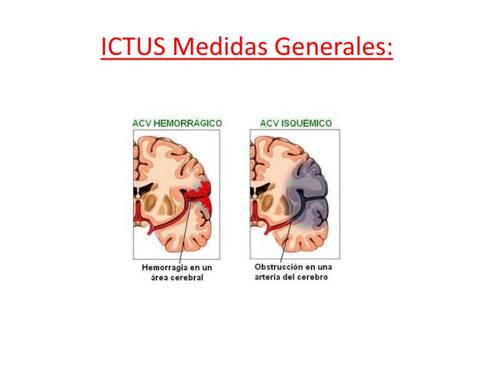 Ictus medidas generales
