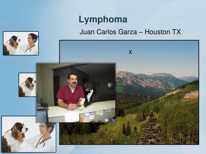 Lymphoma1