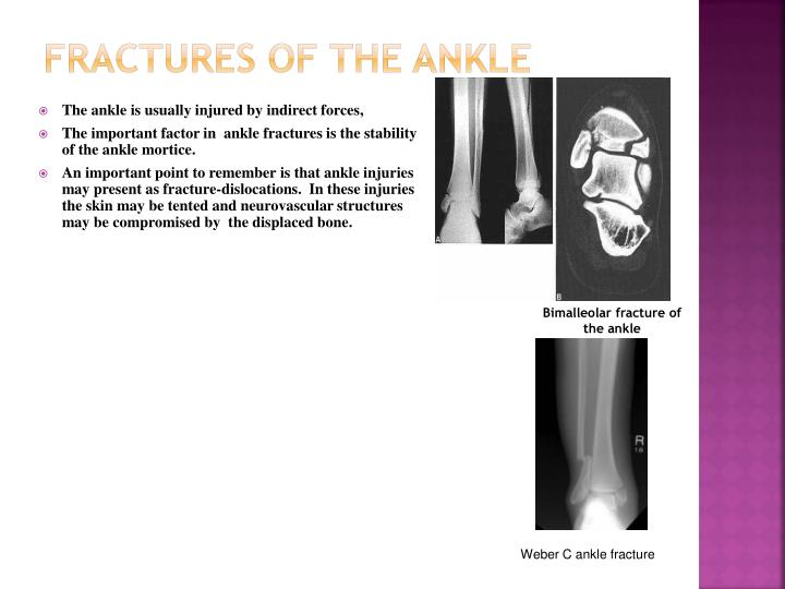 FRACTURES OF THE ANKLE