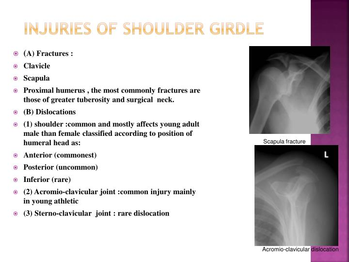 Injuries of shoulder girdle