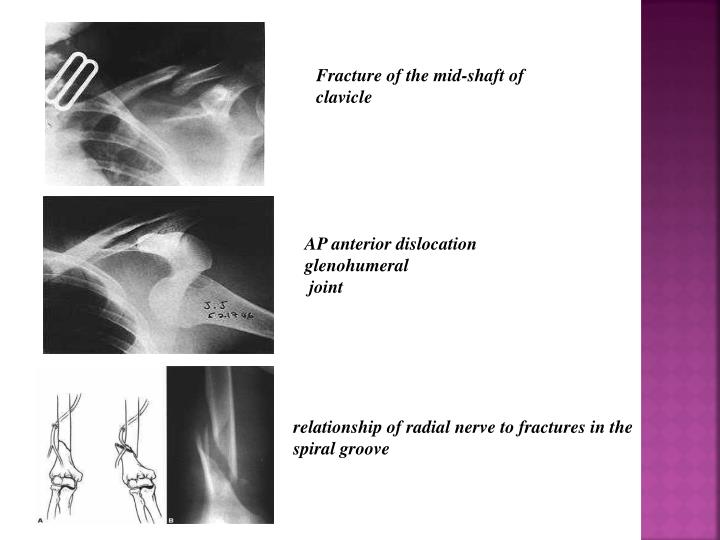 Fracture of the mid-shaft of clavicle
