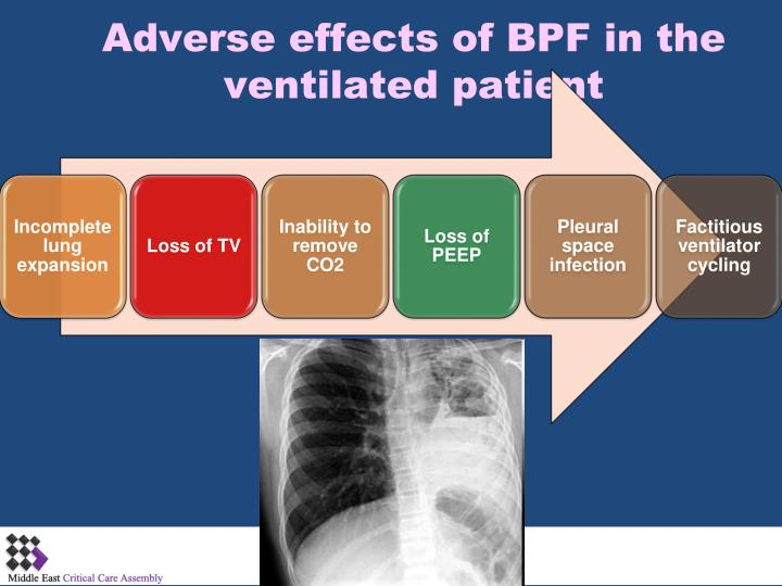 Adverse effects of BPF in the ventilated patient