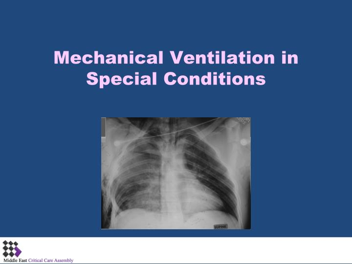 mechanical ventilation in special conditions n.