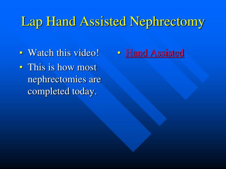 Lap Hand Assisted Nephrectomy