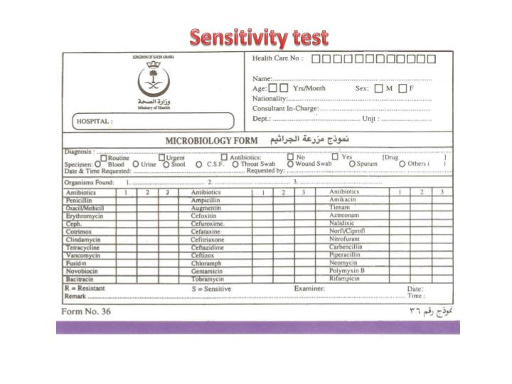 Sensitivity test