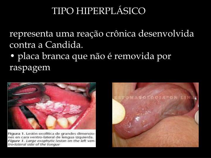 TIPO HIPERPLÁSICO