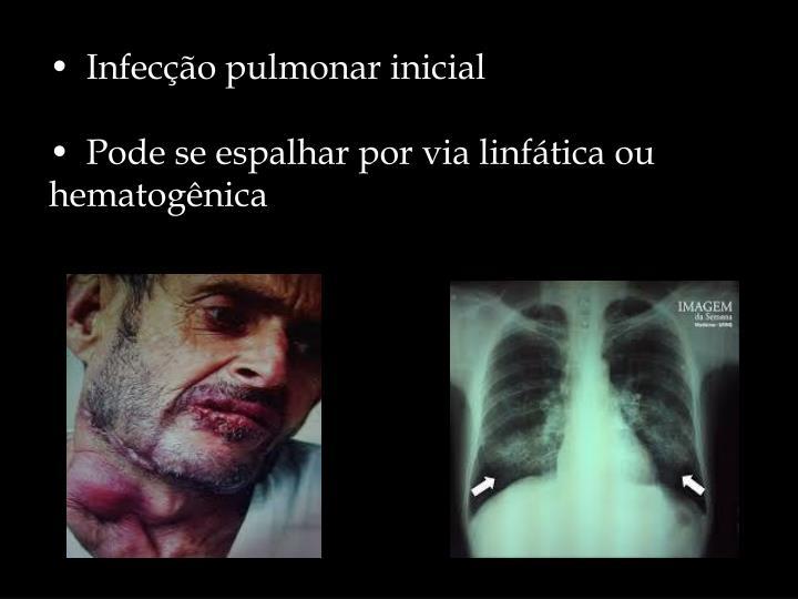 • Infecção pulmonar inicial