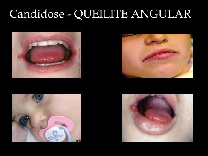 Candidose - QUEILITE ANGULAR
